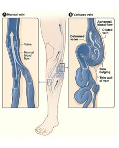 Varicose veins natural treatment