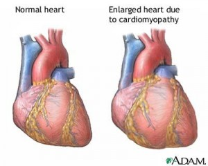 Natural Treatments for Cardiomyopathy