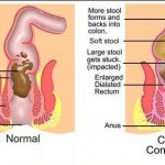 Constipation's Natural Remedies