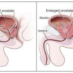 Natural Treatments for Reducing Enlarged Prostate