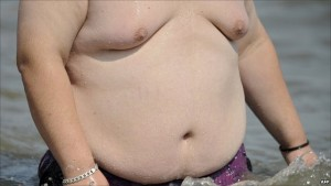 Gynecomastia or Enlarged Men Boobs