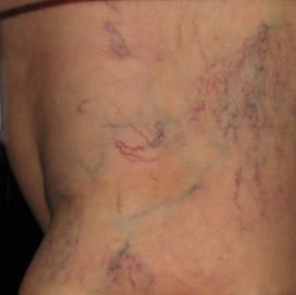 varicose veins natural treatment