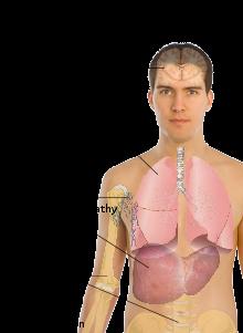 220px-symptoms_of_cancer_metastasissvg