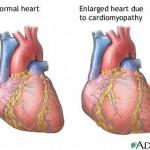 Natural Treatments for Cardiomyopathy