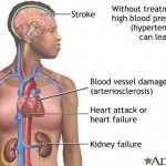 Home Remedies and Natural Cures for Hypertensive Heart Disease