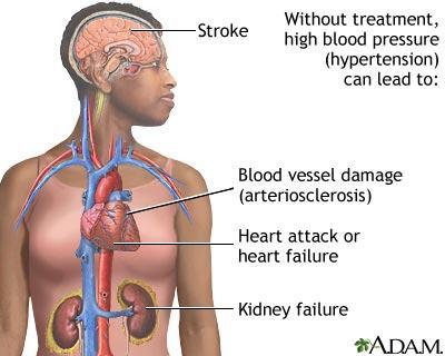 hypertensive-heart