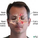 Effective Natural Home Remedies for Sinusitis
